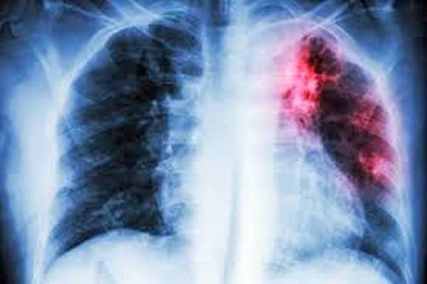 Обнаружен очаг туберкулёза