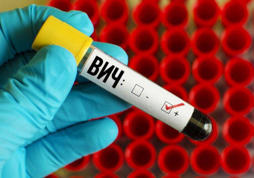 Узнать свой ВИЧ-статус можно сегодня