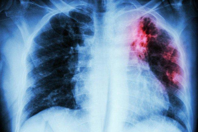 В вашем доме выявлен туберкулёз!