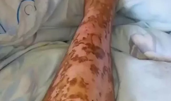 Операция по удалению аппендицита закончилась серьезными ожогами