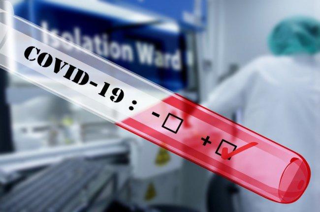 30 новых случаев заражения коронавирусом за сутки